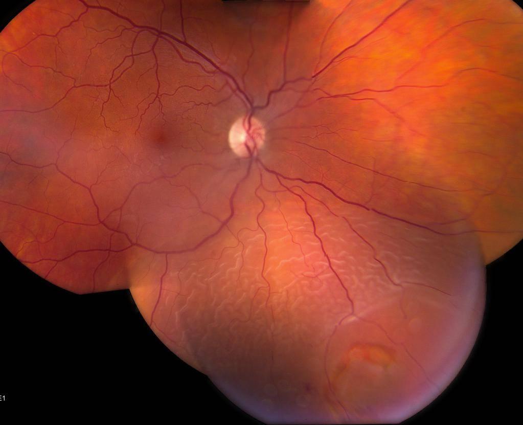 как восстановить сетчатку глаза
