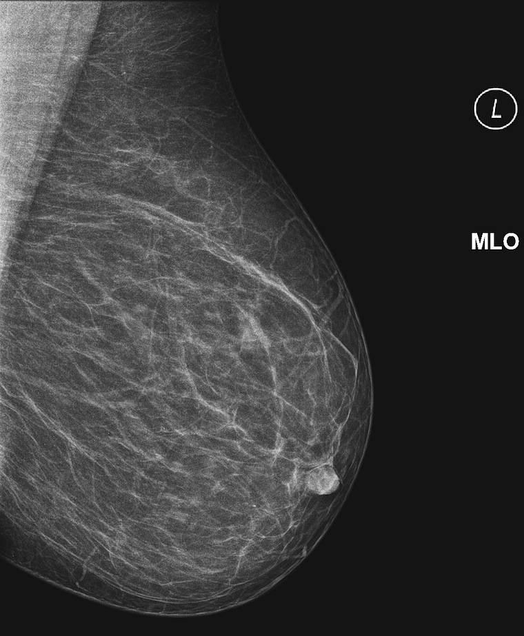 Что лучше сделать маммографию или узи молочной железы