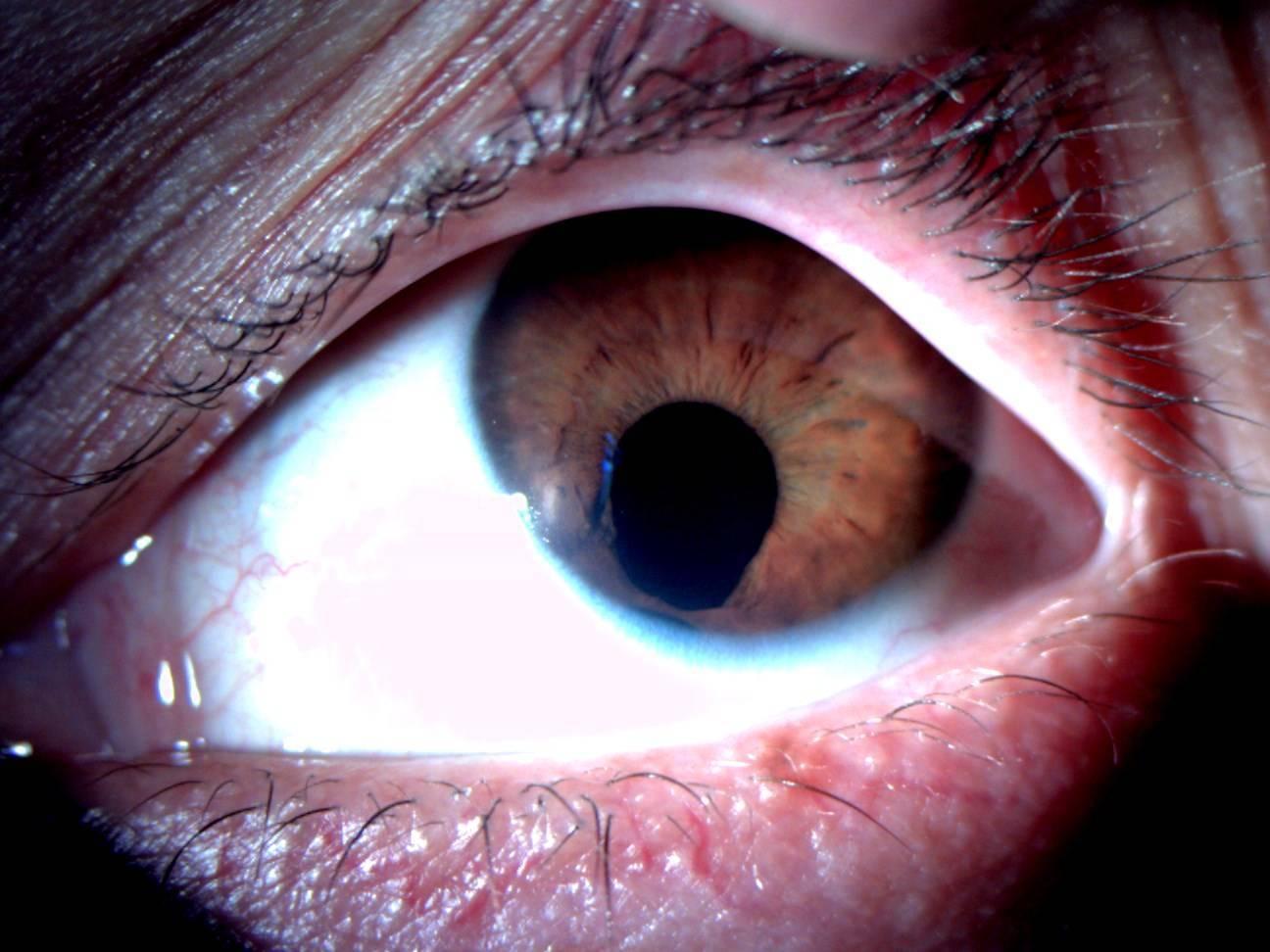 колобома радужки глаз