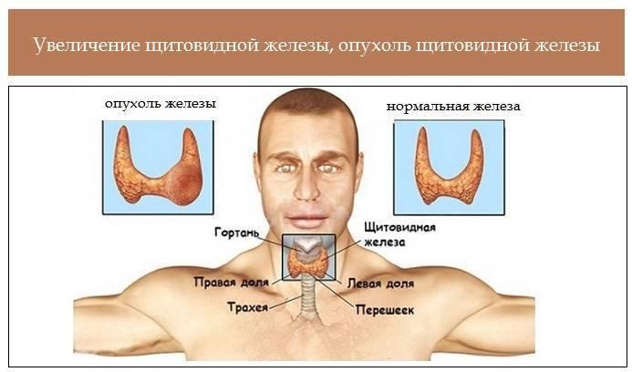 Основные причины заболевания щитовидной железы
