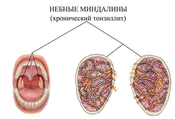 Как распознать и вылечить гипертрофию миндалин у детей