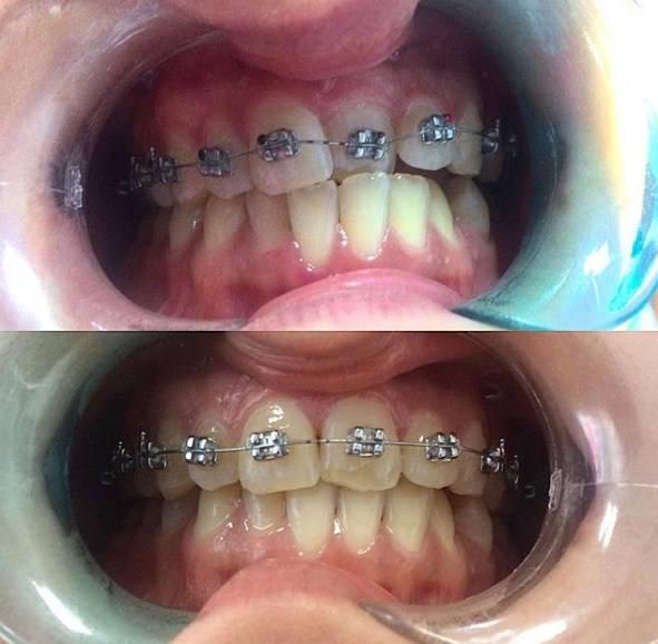 Брекеты и беременность:  стоматология и лечение зубов у беременных мам и детей