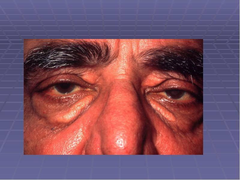 воспаление слезной железы лечение