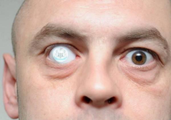 Чем опасно удаление глаза у человека