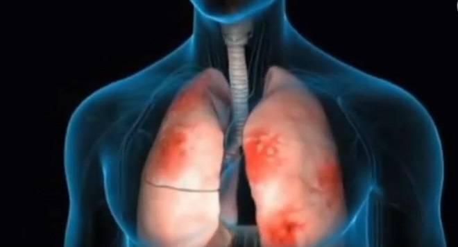 Трахеит: лечение у взрослых и детей. как отличить вирусный от бактериального?
