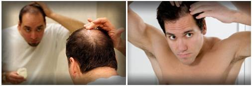 Выпадение волос и щитовидная железа: что делать с щитовидкой
