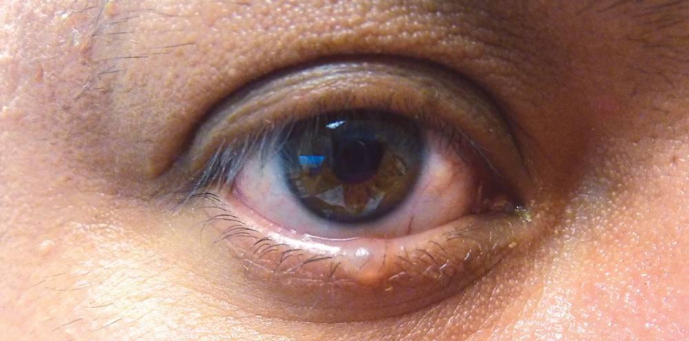 Киста на глазу: разновидности, симптомы, лечение