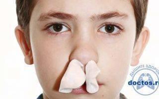 почему течет кровь из носа у подростка