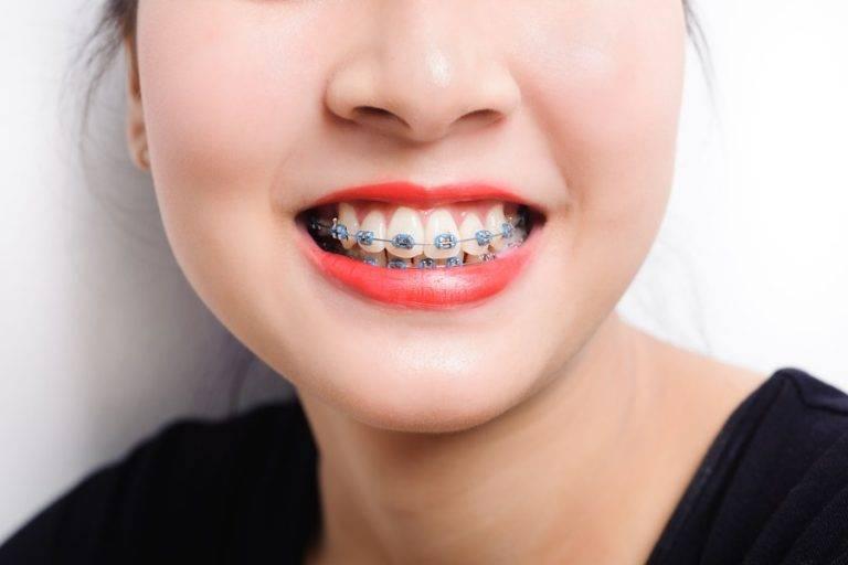 как действуют брекеты на зубы