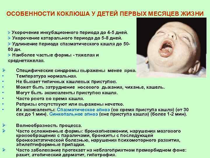 Спастический кашель у ребенка