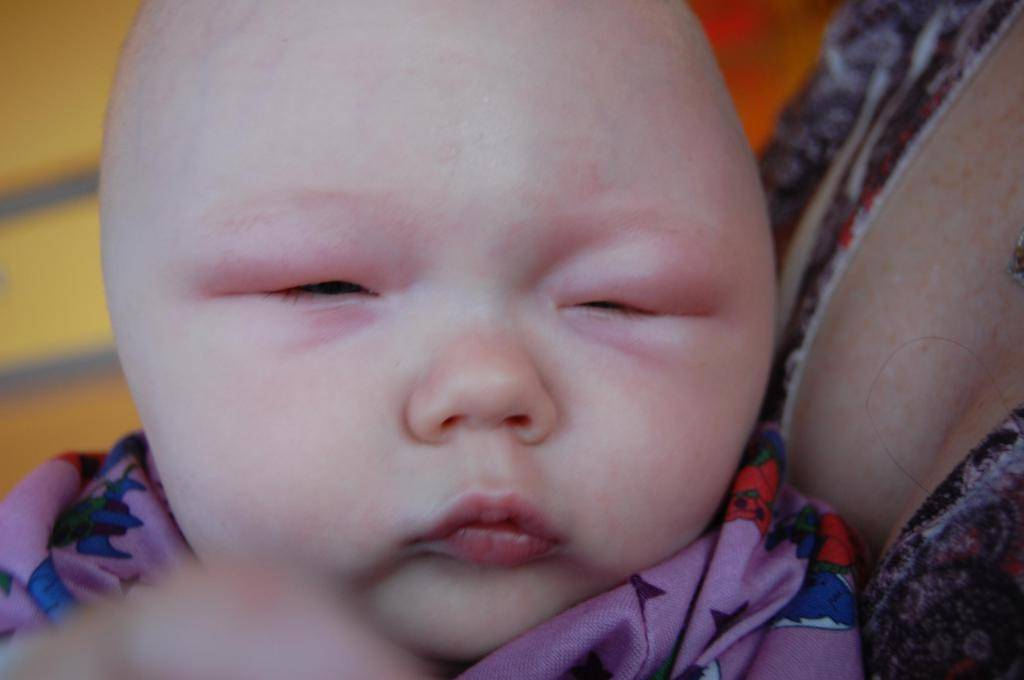 у ребенка сильно опух глаз
