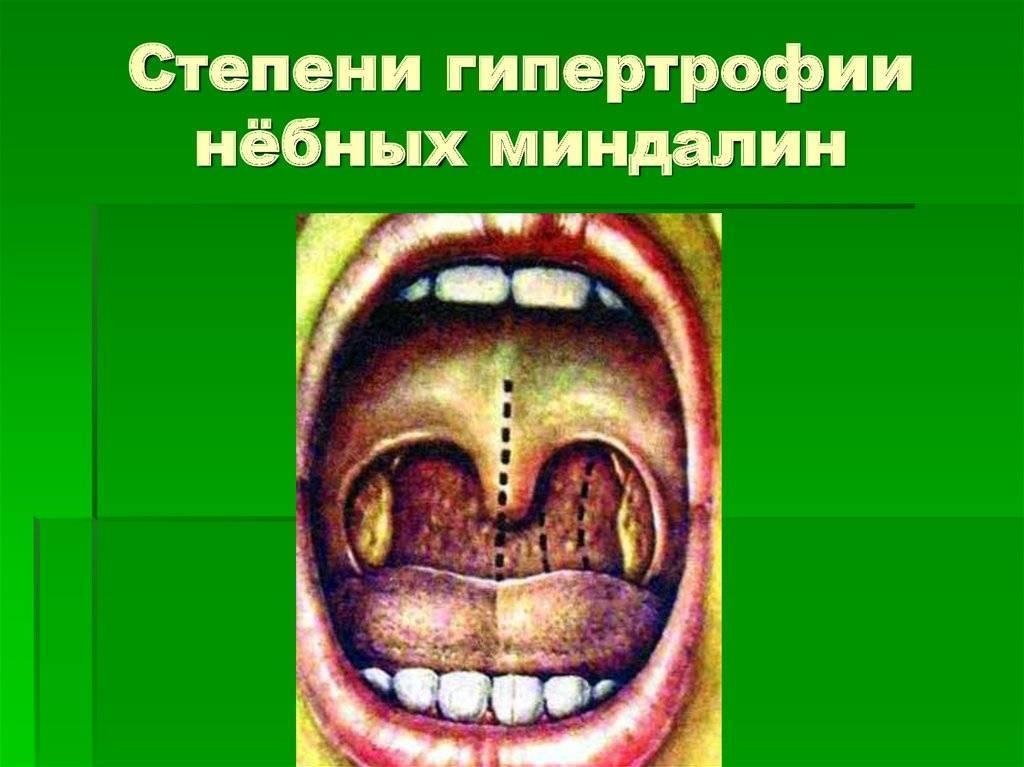 Гипертрофия небных миндалин 2-3 степени