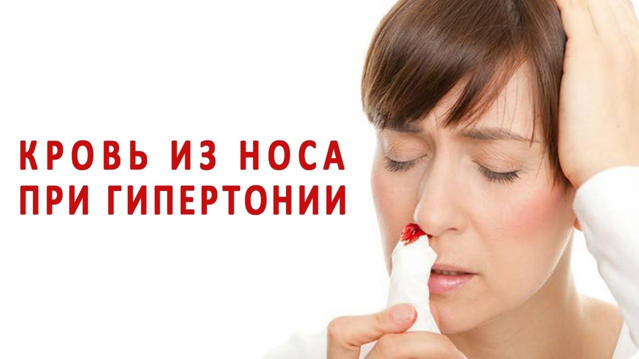 Профилактика носовых кровотечений у пожилых