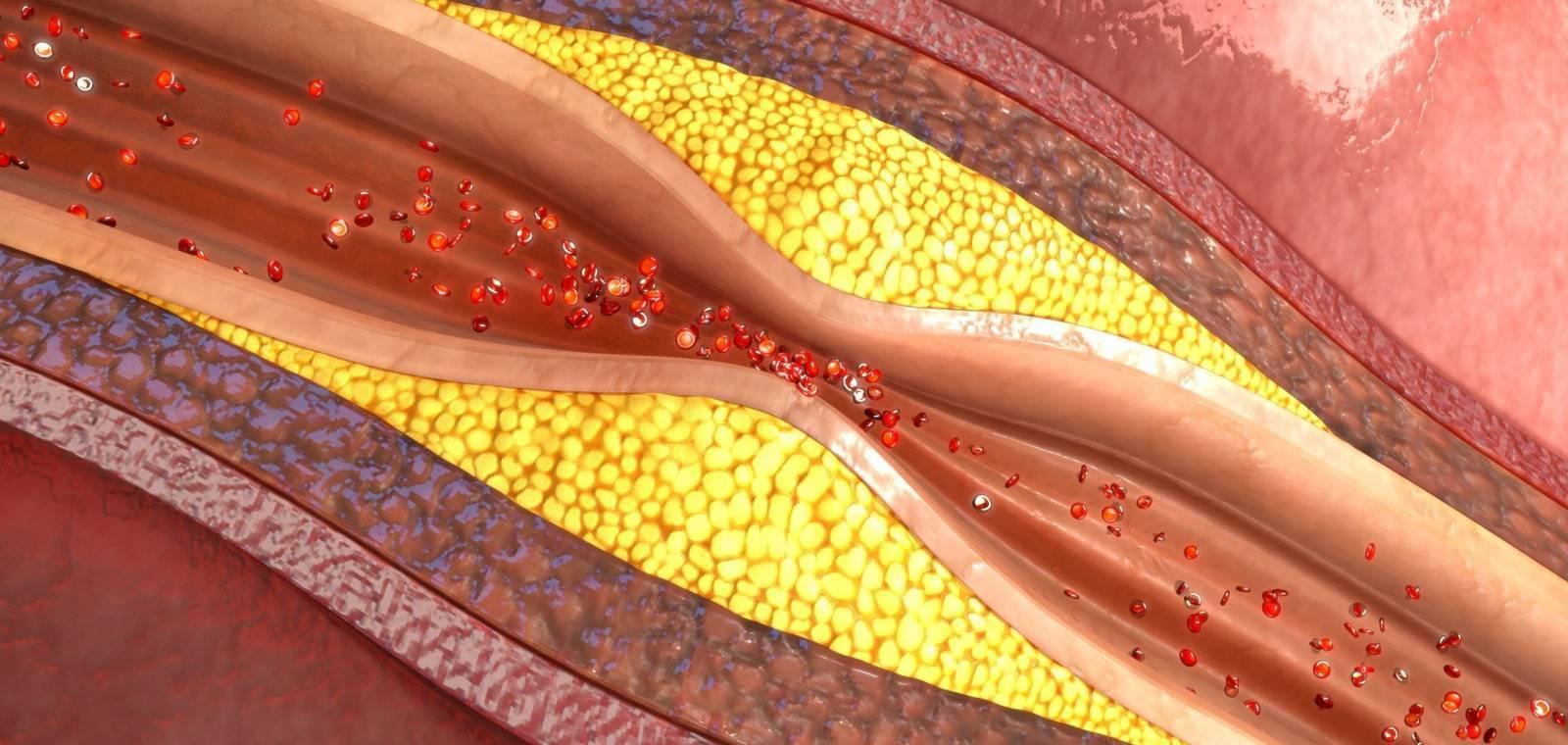 холестириновые бляшки