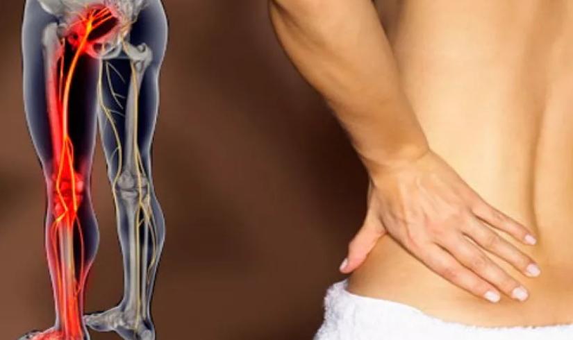 лечение невралгия седалищного нерва лечение