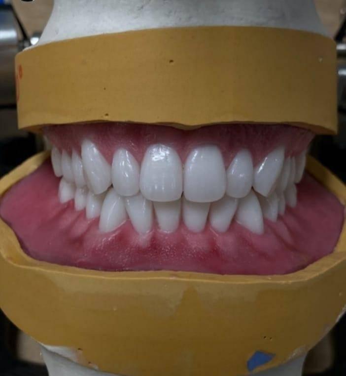 Какие материалы используют для изготовления протезов?