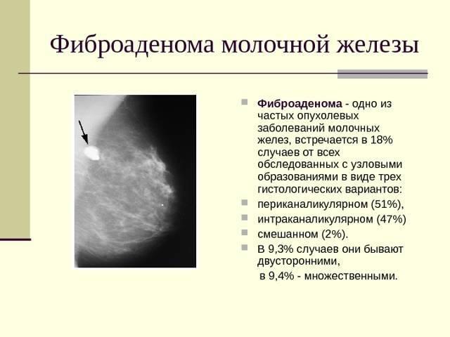 Удаление фиброаденомы молочной железы: методы, показания, возможные осложнения