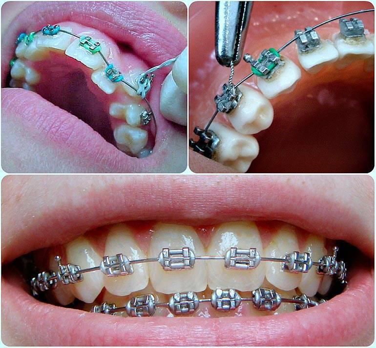 долго ли болят зубы после установки брекетов
