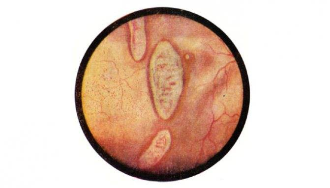 Симптомы и лечение шеечного цистита