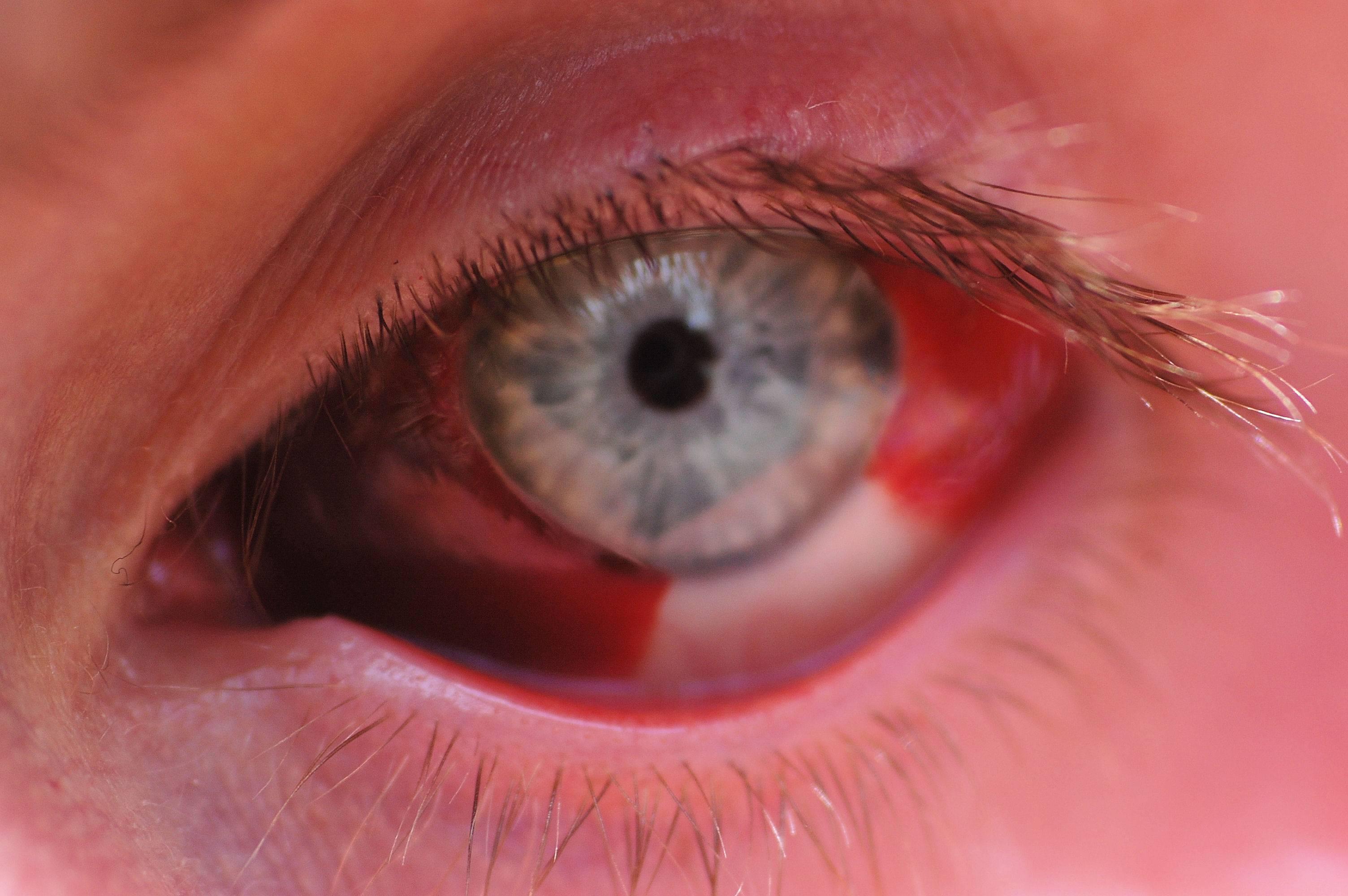 Как правильно реагировать на лопнувший сосуд в глазу