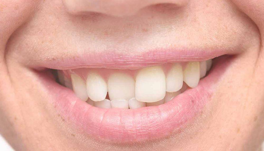 передние зубы кривые что можно сделать