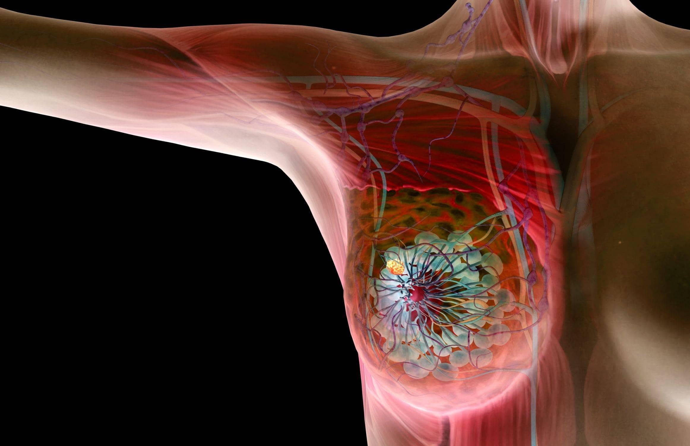 Увеличение лимфоузлов при фиброзно-кистозной мастопатии