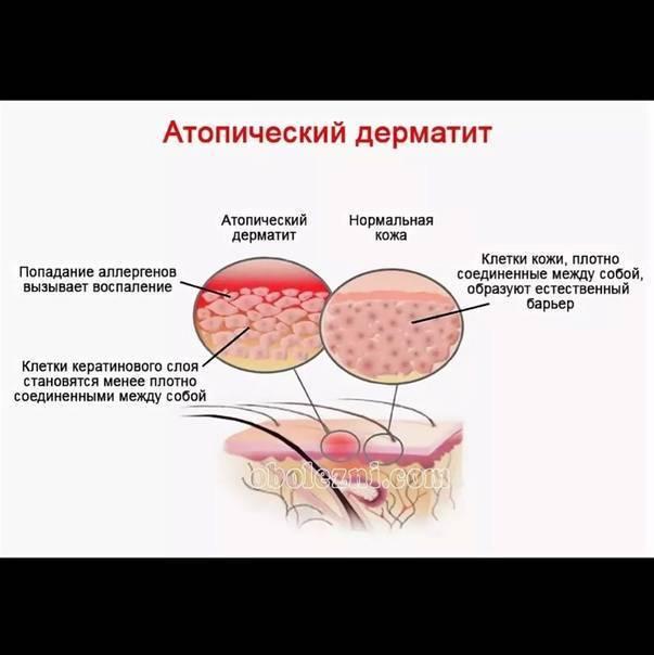 атопический дерматит от глистов