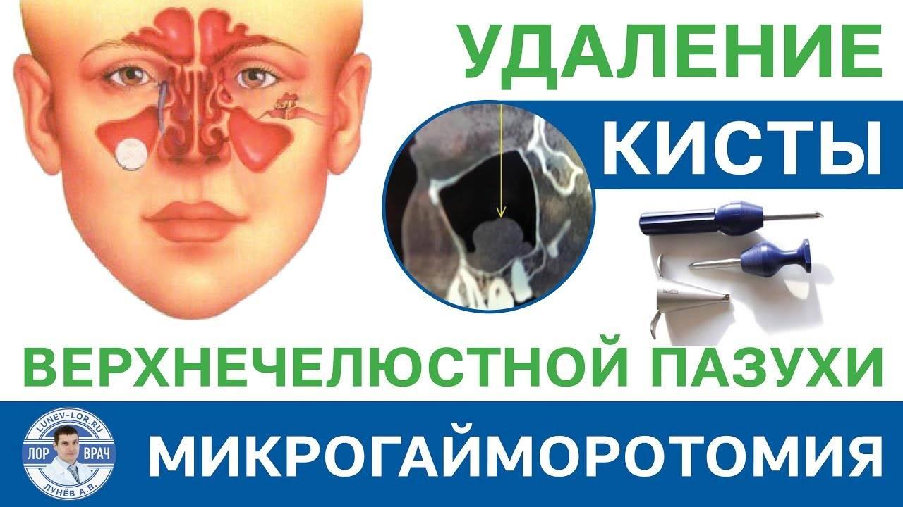 Киста гайморовой (верхнечелюстной) пазухи: причины и развитие, проявления, диагностика, как лечить