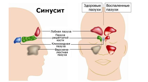 Лечение синусита у детей: народные средства