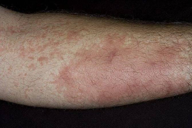разновидности кожного дерматита