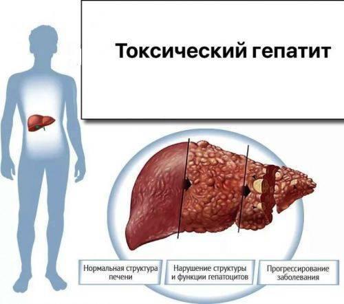 как умирают от гепатита с