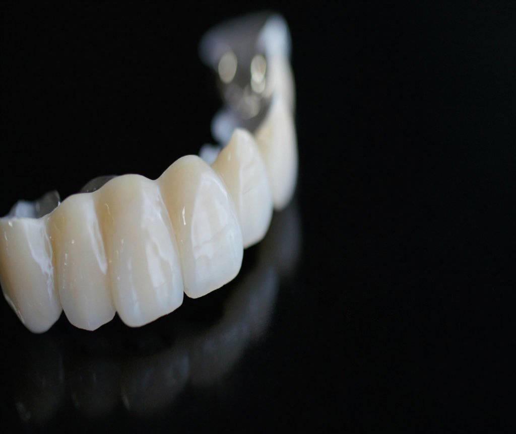 Установка керамических коронок на зубы