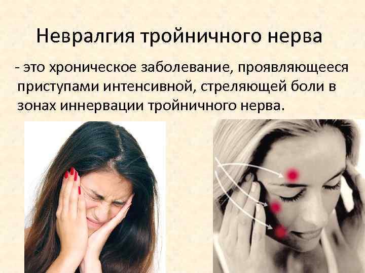 идиопатическая невралгия тройничного нерва