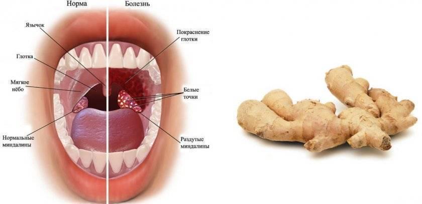 имбирь для лечения горла
