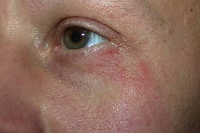 Почему появляются под глазами красные пятна?