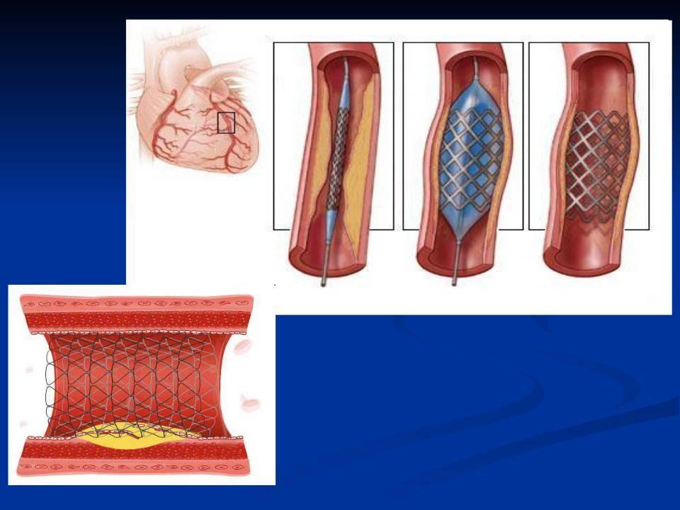 Чтка (чрескожная транслюминальная коронарная ангиопластика)