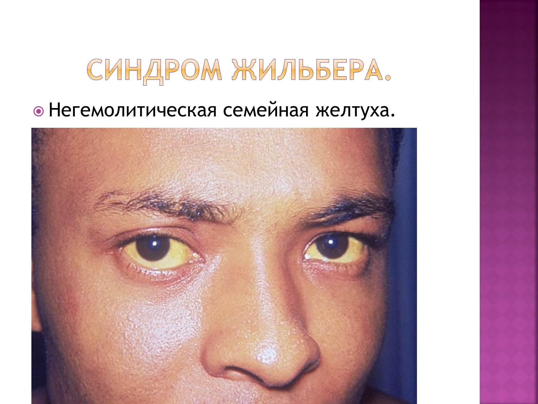 Синдром жильбера армия россия