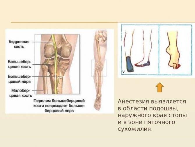 Неврит малоберцового и большеберцового нервов