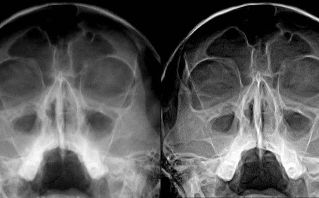 как делают рентген носовых пазух