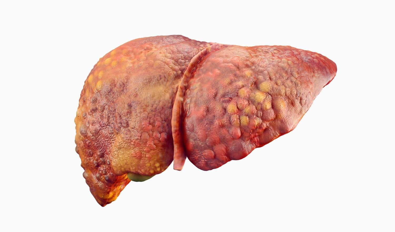 Восстановление печени после пвт гепатита с