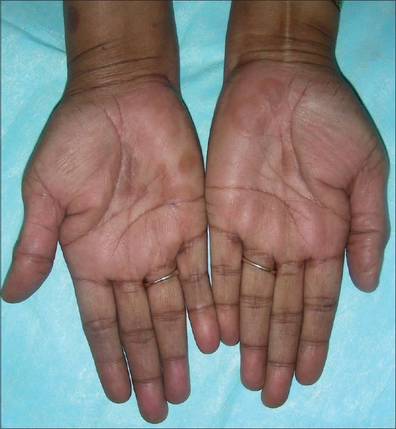 ладонно подошвенный псориаз лечение