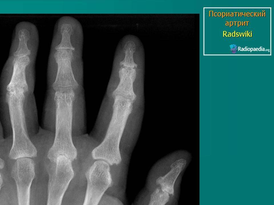 Артропатический псориаз: лечение, фото