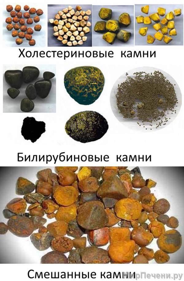 камни в желчном пузыре причины образования