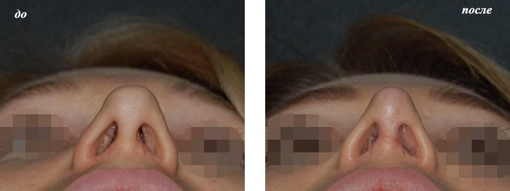 Синехии в носу
