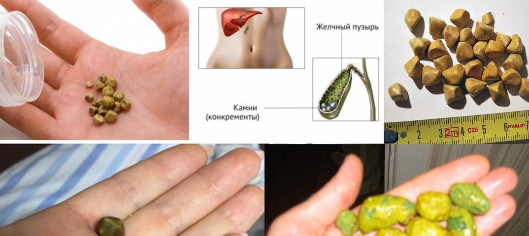 Причины, симптомы и методы лечения камней в желчном пузыре