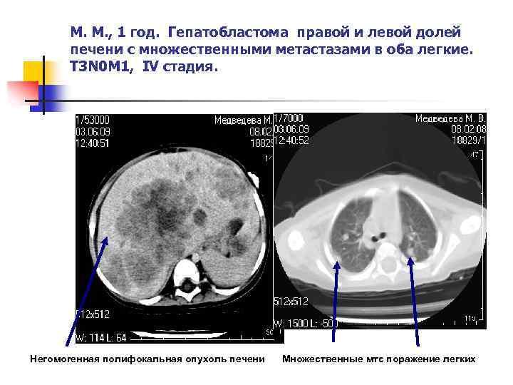 Рак печени у ребенка симптомы