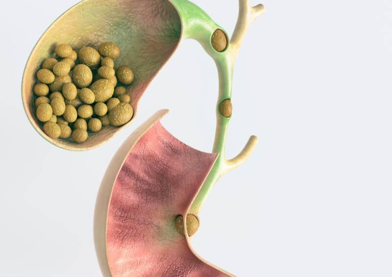 Рак желчного пузыря: симптомы и проявления болезни