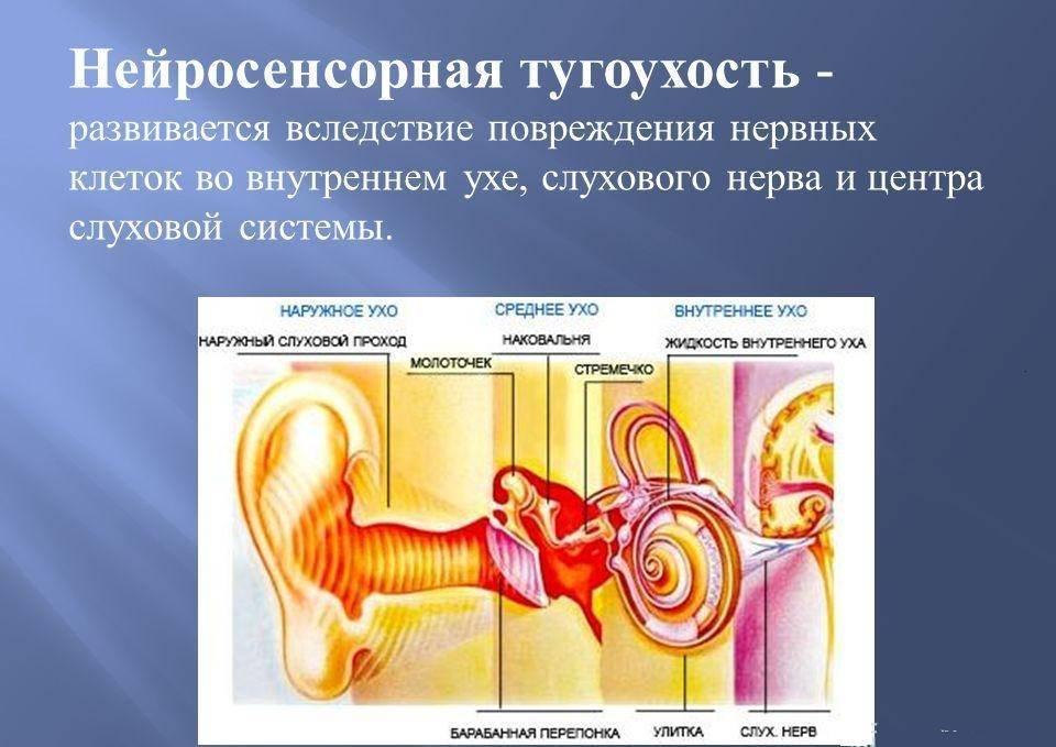 Тугоухость – потеря слуха