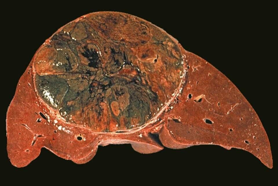 Карцинома печени: виды, симптомы, прогноз выживания