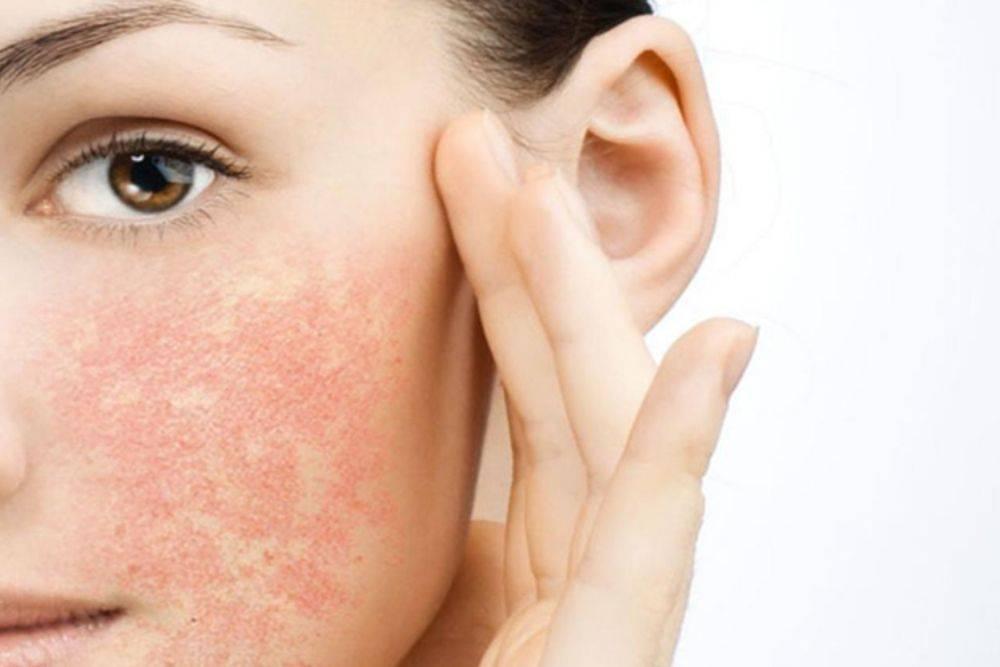 Солнечный дерматит